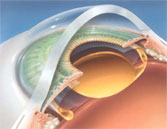 Unfolded ACRYSOF® lens in eye